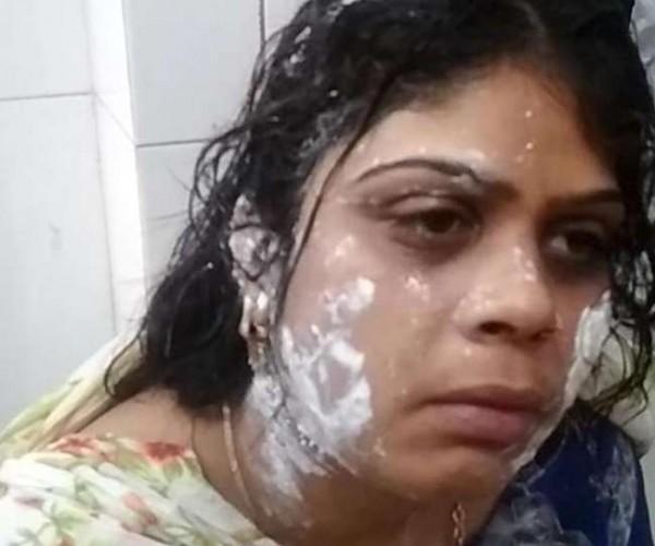 मुरादाबाद मे प्रेमिका के चक्कर में पत्नी के चेहरे पर फेंकी खौलती चाय
