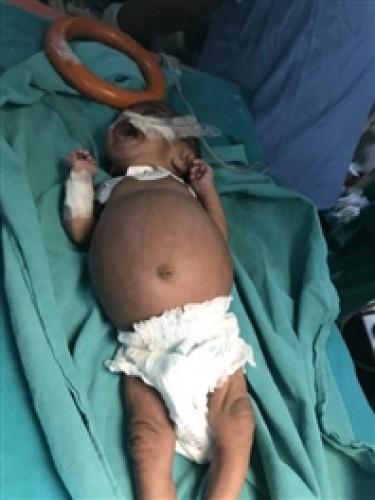 वाराणसी स्थित बीएचयू मे एक माह की बच्ची के पेट से निकाला अविकसित भ्रूण, पांच लाख में एक मामला