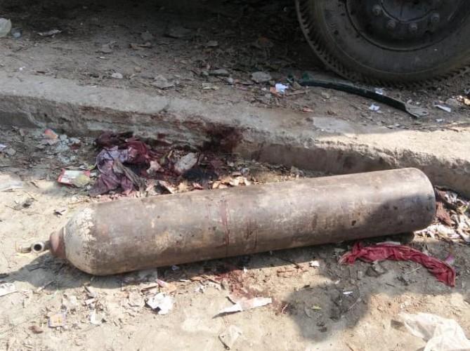 कानपुर मे तेज धमाका और फैल गईं खून की छीटें, युवक के दोनों पैर उड़े तीन राहगीर भी हुए घायल