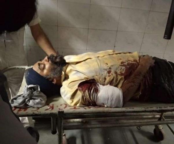 राजधानी लखनऊ में कपड़ा व्यापारी पर हमला, तमंचा सटाकर मारी गोली