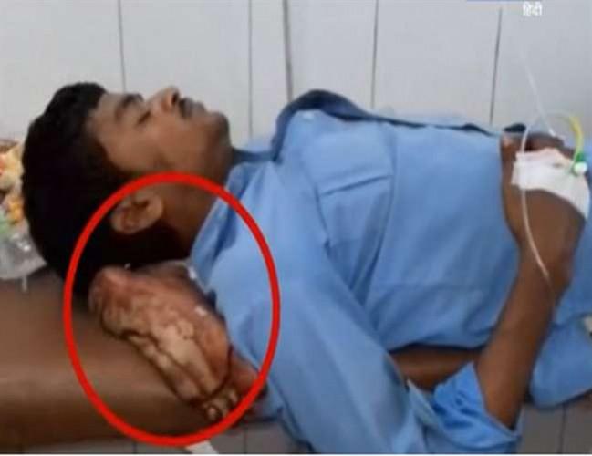 झांसी मेडिकल कॉलेज में मरीज के कटे पैर को बना दिया तकिया, हंगामा