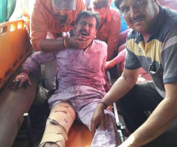 लखीमपुर सदर से भाजपा विधायक योगेश वर्मा को होली के दौरान मारी गई गोली, जख्मी