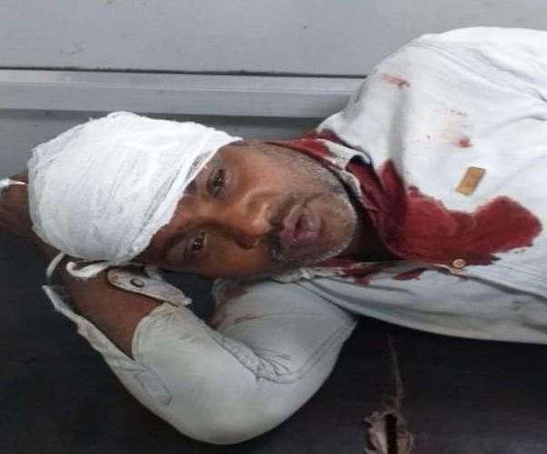 राजधानी में नशे में धुत दबंगों ने युवक को किया शूट, ट्रामा में भर्ती