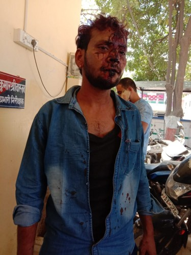बर्रा मे  दरोगा पुत्रो की दबंगई पत्रकार नीरज श्रीवास्तव पर तमंचे की बट मारकर किया घायल