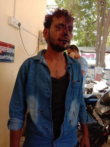 पत्रकार नीरज श्रीवास्तव के ऊपर हुए जानलेवा हमले मे दो दिन हुए प्रसाशन ने नहीं की कोई कार्यवाही
