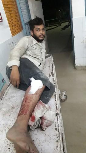 पुलिस बदमाशों मे मुठभेड़ के दौरान तीन बदमाश घायल पुलिस ने दबोचा
