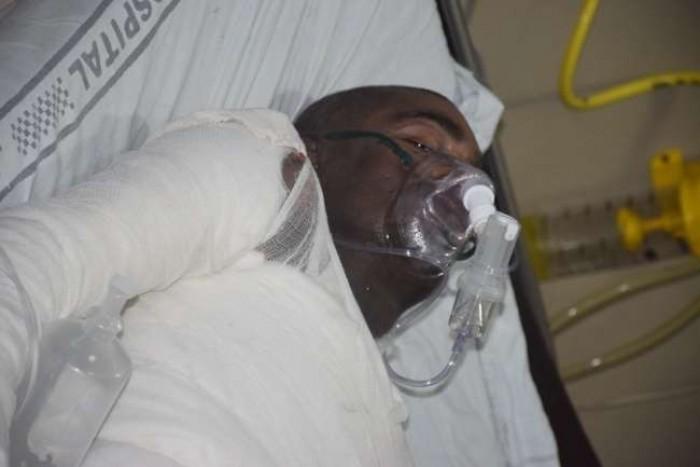 अलीगढ़ में सांसद कार्यालय पर जले युवक की दिल्ली में मौत