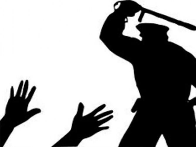हाथरस में पुलिस ने थाने ले जाकर दो फौजियों और शिक्षक को दी थर्ड डिग्री