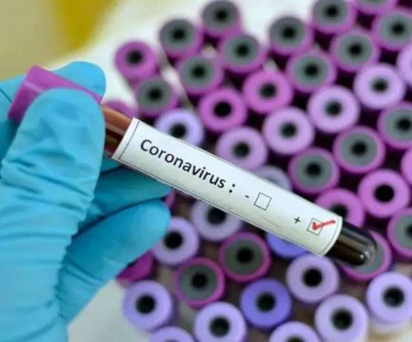 आगरा मेंं कुल कोरोना संक्रमित 596, 15 की मौत, 134 लोग हुए ठीक