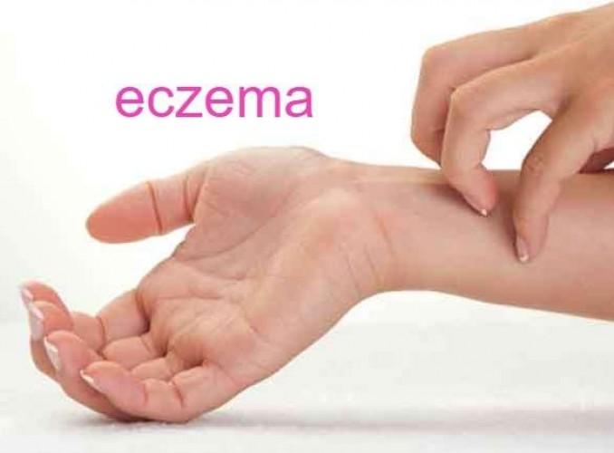 कोरोना काल में आठ फीसद बढ़े इरिटेंट डर्माटाइटिस के मामले; एग्जिमा का भी खतरा