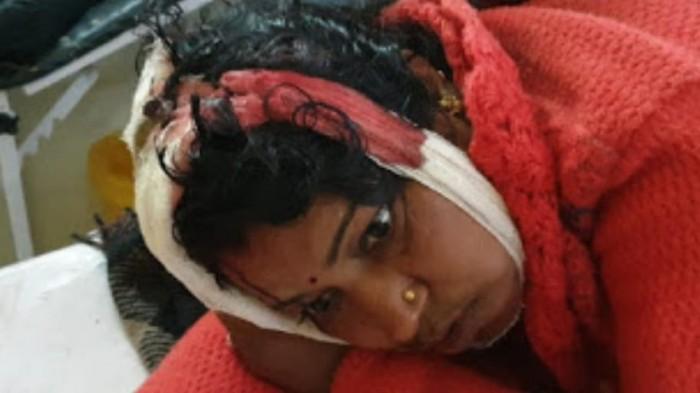 दबंगों ने कुल्हाड़ी से महिला पर किया हमला, हालत गंभीर