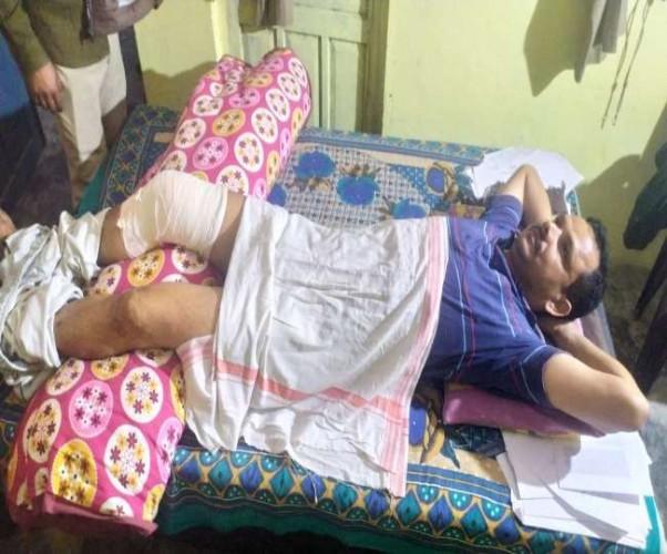 रायबरेली अपराधी को पकड़ने के लिए पुलिस ने की घेराबंदी, बाइक सवार बदमाश ने दरोगा को रौंदा