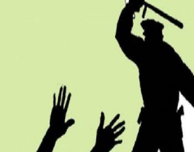 जमीन विवाद में चौकी इंचार्ज ने दारोगा को पीटा